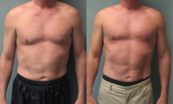 55_year_old_male_with_moderate_gynecomastia_before_and_after_gynecomastia_surgery